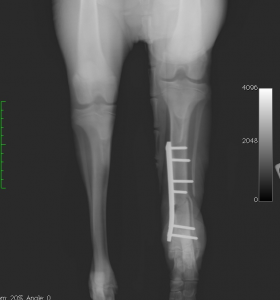 Fracture tibia apres chirurgie