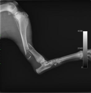 fracture tibia