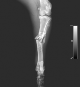 Tibia fracture 1